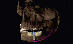 implant_3_pi_integrated_implantology_311
