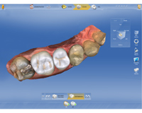 pi-biokiefer-cerec-restaurationen