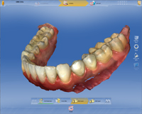 pi-cerec-ortho-digitale-modelle_200